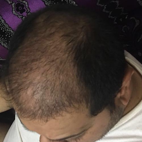 تجربتي مع مركز اثيكانا لعملية زراعة الشعر في تركيا